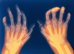 X-Ray of hands with Rheumatoid Arthritis