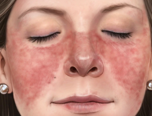 What Are the 4 Types of Lupus?