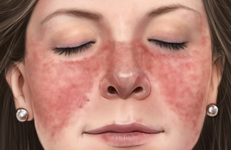 butterfly rash common in lupus