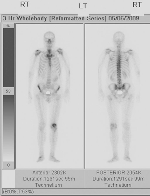 full body images produced during a bone scan