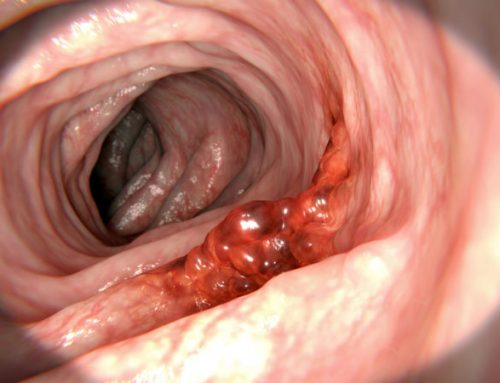 Top 7 Common Colon Cancer Questions Answered