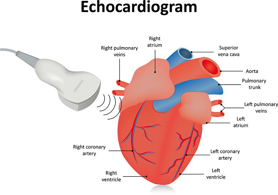 how an echocardiogram works