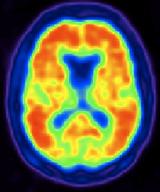 nuclear medicine image of brain