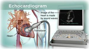 echocardiogram equipment