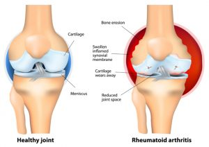 healthy versus rheumatoid arthritis hands